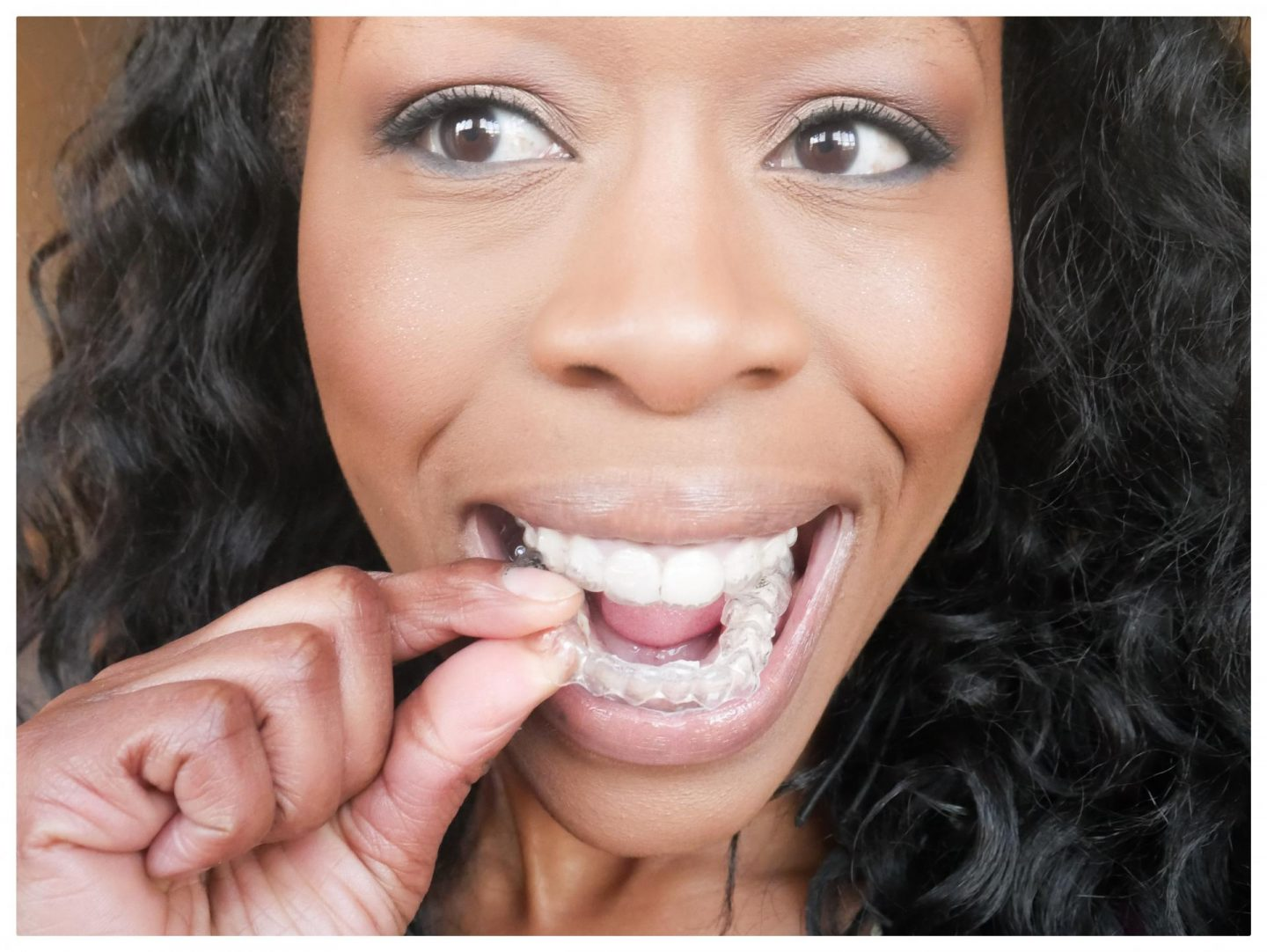 My Invisalign Progress and Review: What's it like to get Adult Braces?| # 1