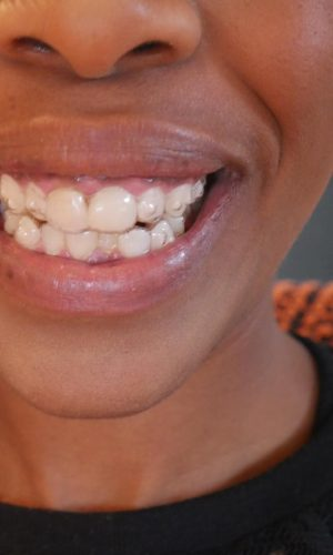 My invisalign progress and review whats it like to get adult my invisalign progress and invisalign review i got invisalign clear braces find out more solutioingenieria Choice Image